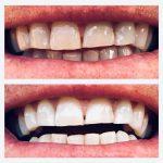 teeth-kleine-afbeeldin